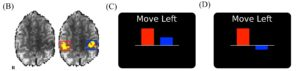 MOVE LEFT 300x71 - Difficulty moving arm/hand after stroke? Neurofeedback - Stroke Exercise Training - online courses for therapists