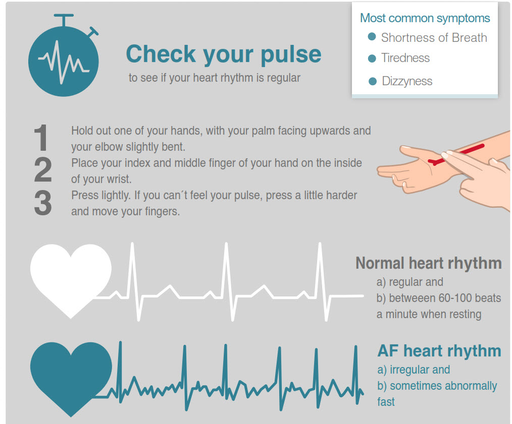2018 10 11 20 23 01 - Atrial Fibrillation raises risk of stroke by 5: can you tell if you have it? - Stroke Exercise Training