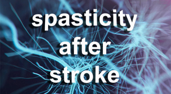 ARNI SPASTICITY AFTER STROK 600x330 - Spasticity after Stroke: Will my Hand Get Better? - Stroke Exercise Training