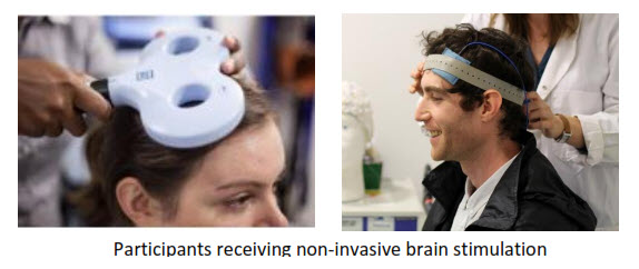 arni brain stimulation ucl - Can Brain Stimulation Help your Arm after Stroke? - Stroke Exercise Training